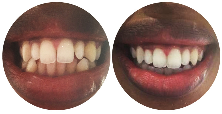 Sapphire Braces™ - Adult Braces Customised by our Dentist